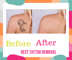Tat B Gone Before After