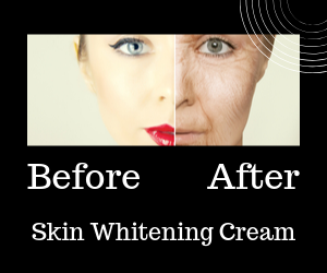 Skin Whitening Cream Before And After