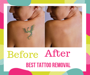 best Tattoo Removal Before And After
